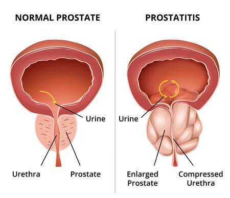V- vitaminok a prostatitisben